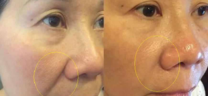 nâng cơ mặt bằng công nghệ Ultherapy và cấy collagen