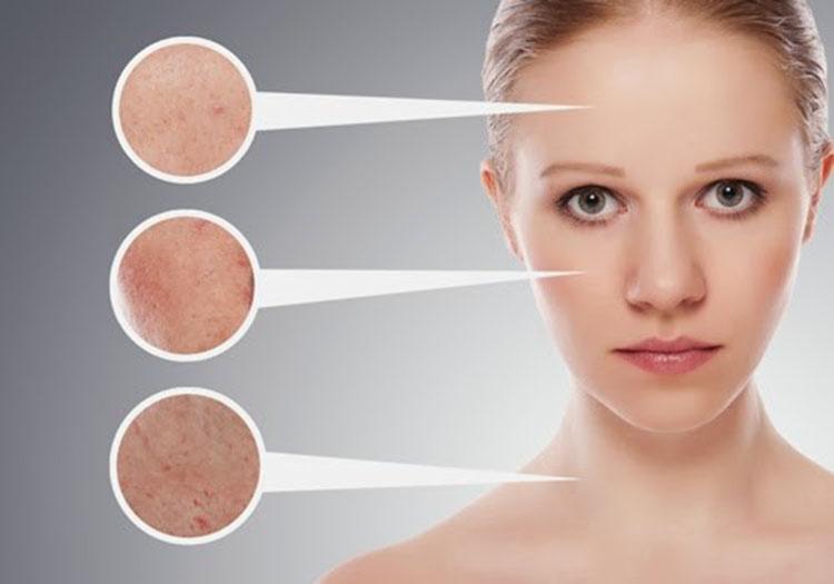 Đối tượng áp dụng trị sẹo lồi và sẹo lõm bằng công nghệ Mesotherapy