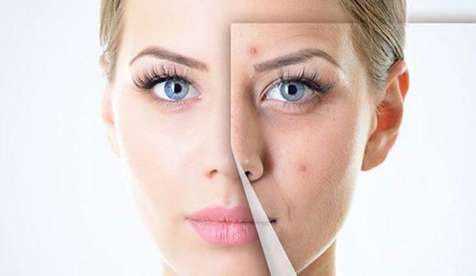 Dịch vụ trị sẹo lồi và sẹo lõm với công nghệ Mesotherapy