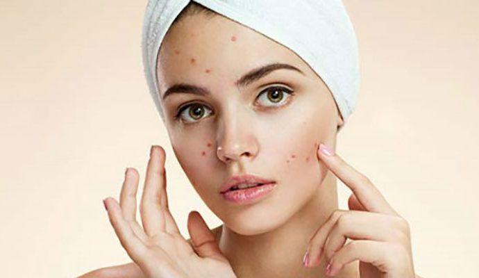 6 điều nên làm khi da nổi mụn cần có trong cẩm nang cầm tay