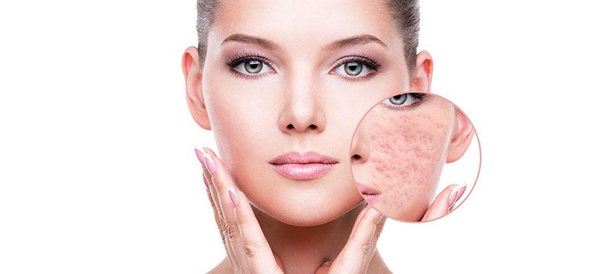 phương pháp điều trị sẹo rỗ hiệu quả hàng đầu hiện nay