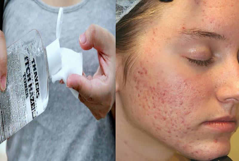 Dùng sản phẩm chăm sóc da chứa cồn hoặc khiến da khô